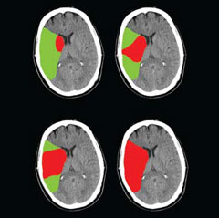 NINDS Know Stroke Campaign - strokechallenges